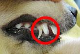 乳歯が抜けず永久歯との間に歯石がたまっている