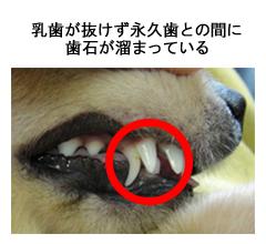 乳歯が抜けず永久歯との間に歯石が溜まっている