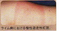 ライム病における皮膚疾患